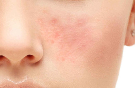 treating acne - Accutane BE